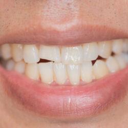 Pęknięty lub złamany ząb - jakie leczenie u dentysty pomoże?