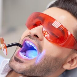 skuteczne wybielanie zębów w gabinecie stomatologicznym lampą